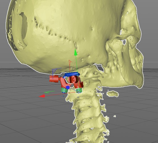 3D printed implant for the medical industry