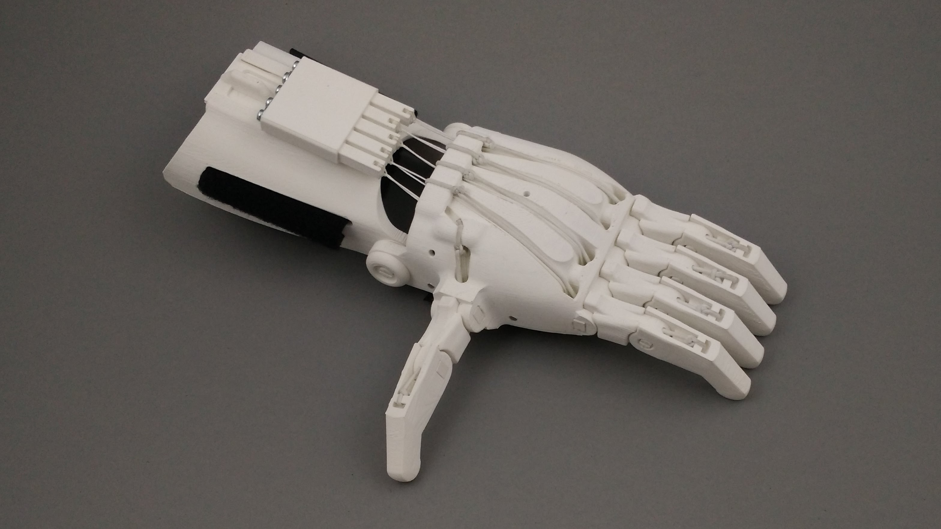3D printed prosthetics thanks to Handesign?