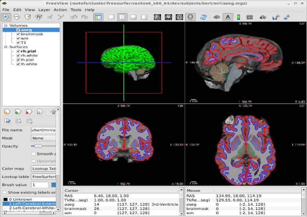 open-source-imaging-project-upload-freesurfer-GUI