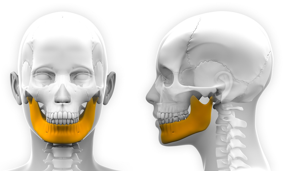 3D printing for jaw reconstruction