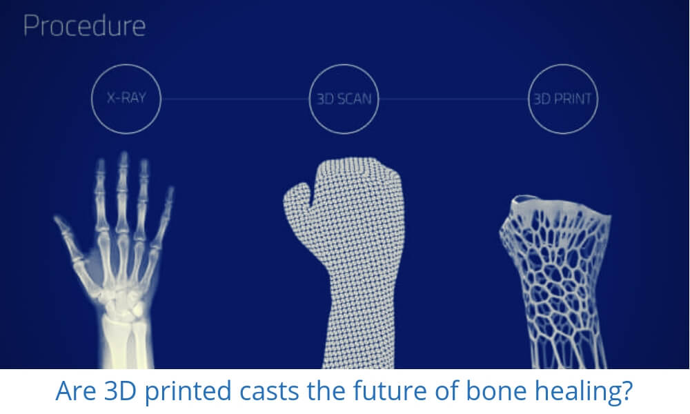 Can Additive Manufacturing heal bones with a 3D printed cast?