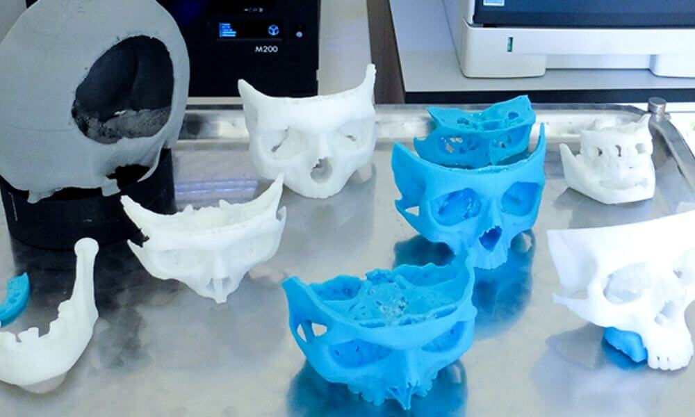Medical & criminal 3D printing: the revolution of facial reconstruction